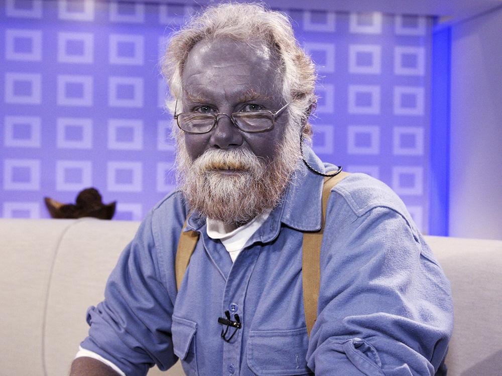 Пол Карсон заболел аргирией, потому что 14 лет пил коллоидное серебро и наносил его на кожу. Егопрозвали «папа Смурф». Источник: Wired