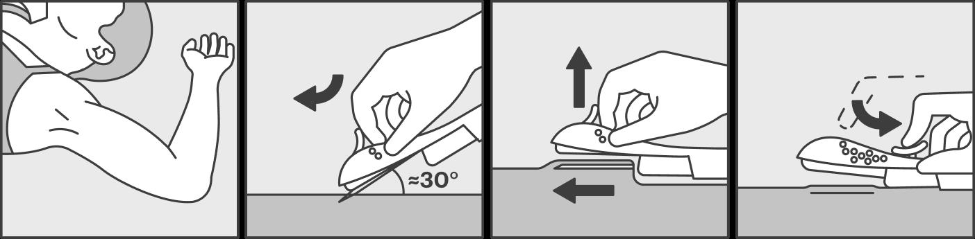 Во время процедуры пациентка сидит или лежит на кушетке. Надо согнуть руку в локте: если вы правша — левую, если левша — правую. Затем вас попросят повернуть ее наружу так, чтобы запястье было параллельно уху. После обезболивания врач вводит кончик иглы аппликатора подкожу, приподнимает ее и медленно вводит иглу на всю длину параллельно поверхности кожи. Затем надавливает на поршень, который проталкивает имплантат. Иглу извлекают, а имплантат остается подкожей