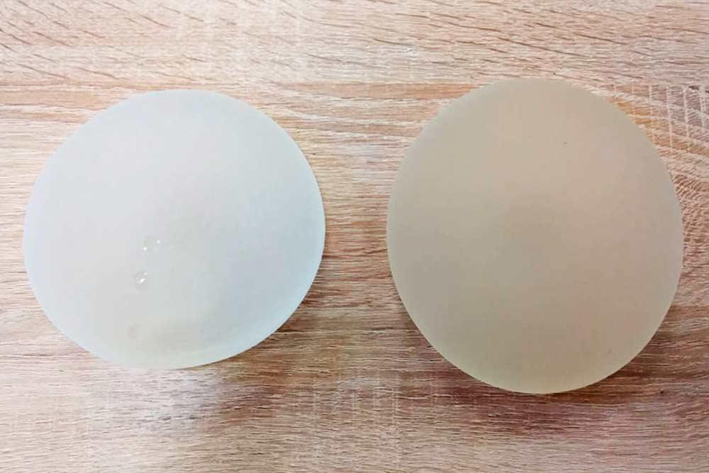 Слева — анатомический имплант, справа — круглый
