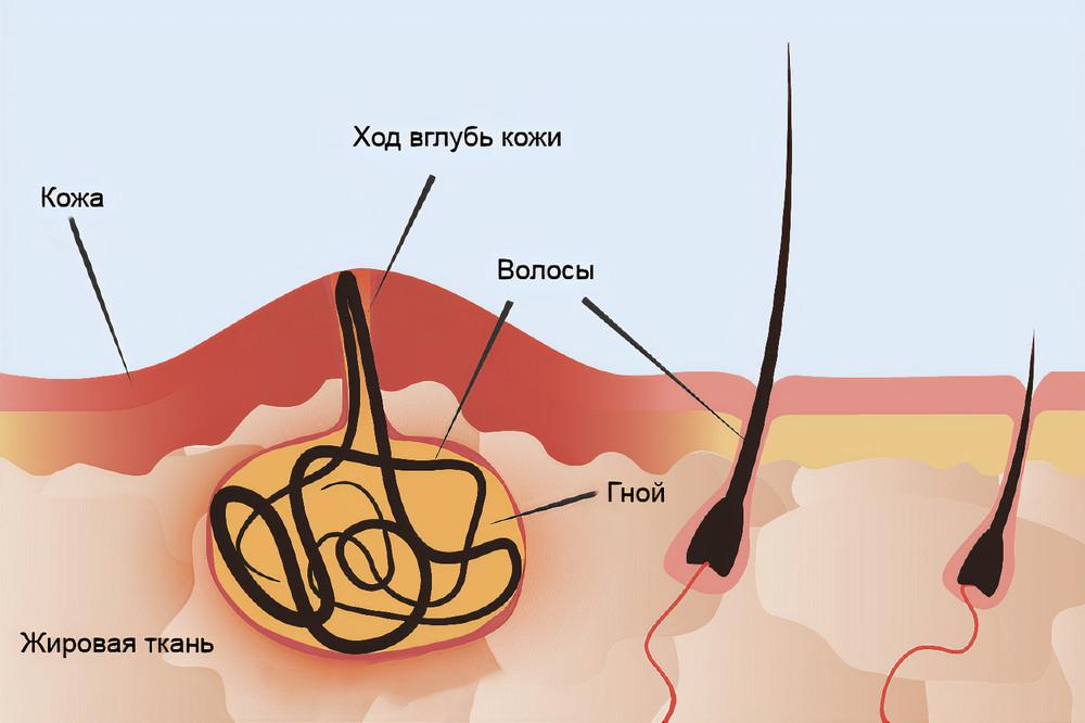 ЭКХ на коже ивнутри нее. Источник: UpToDate
