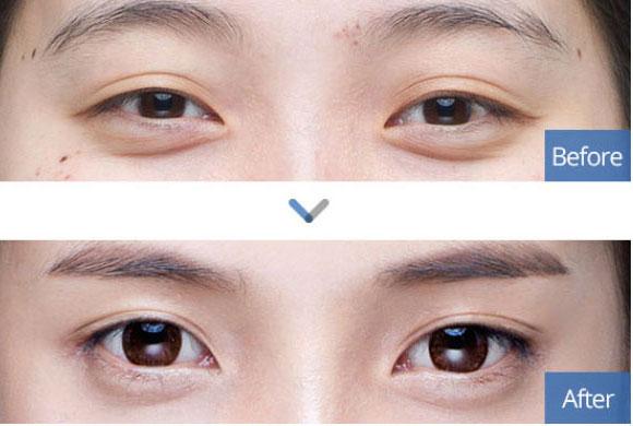 Одна из самых популярных процедур — изменение формы глаз