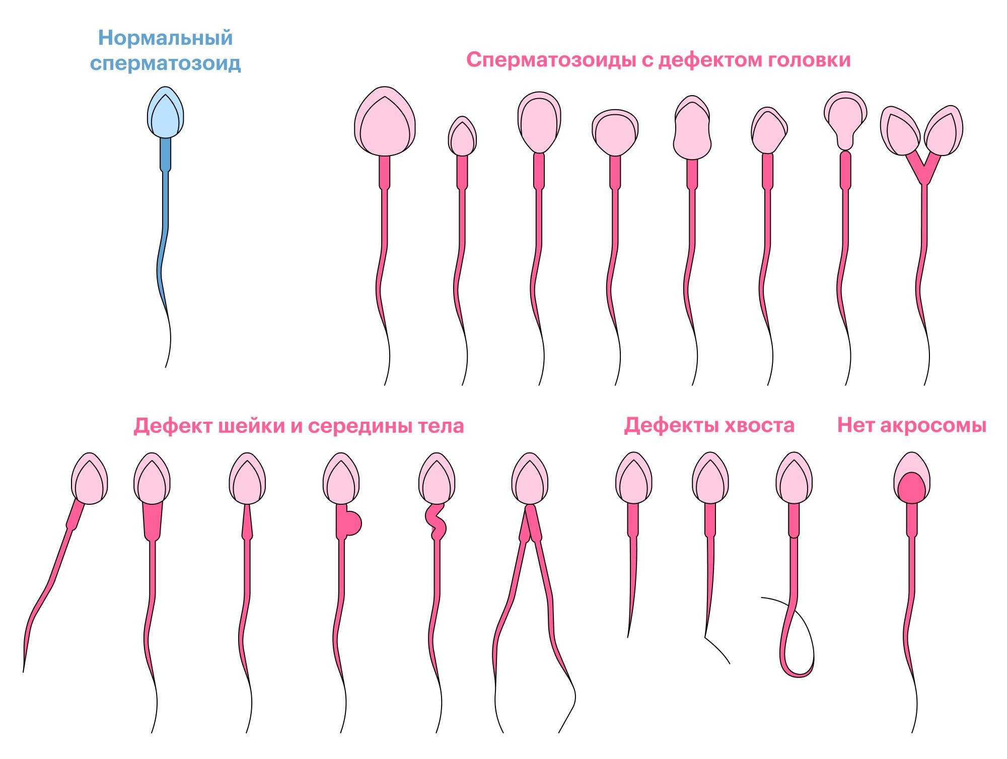 Голубой сперматозоид идеальной формы, поэтому ему будет проще добраться доцели, чем красным коллегам