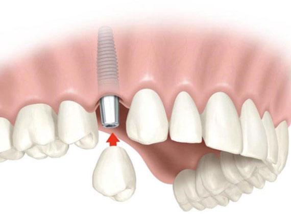 Имплант с коронкой замещает удаленный зуб, но при некоторых болезнях он может не прижиться. Имплант одного зуба с коронкой стоит 50—100 тысяч рублей