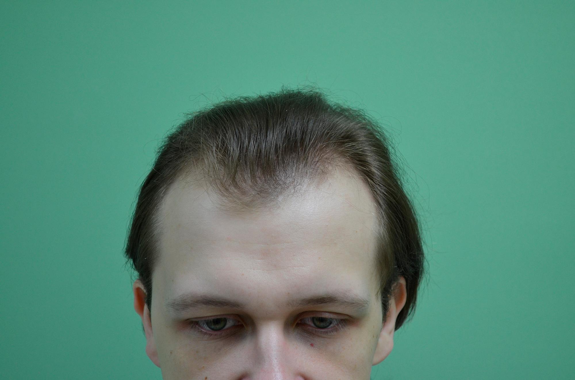 Так выглядели мои волосы до операции