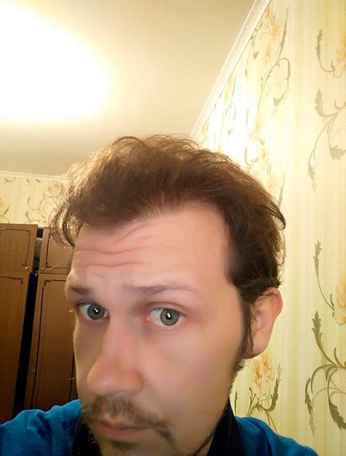 Так выглядели мои волосы спустя полгода после первой операции