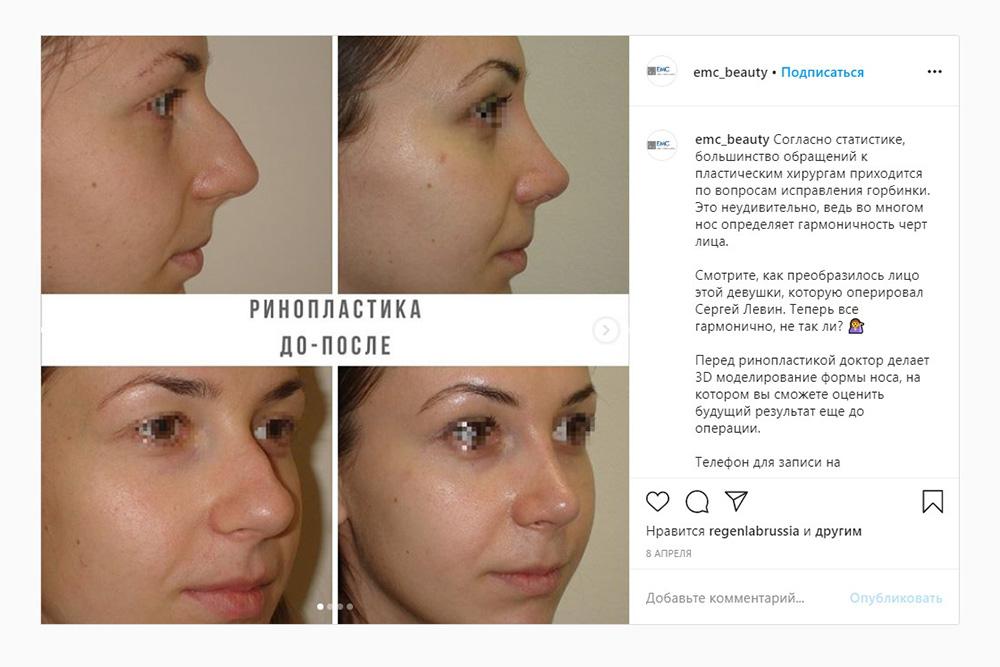 Пример ринопластики с исправлением горбинки носа. Источник: emc_beauty / Instagram