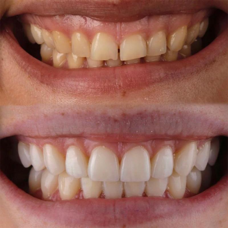 Верхний ряд — зубы до лечения, нижний — после установки виниров. Фото: Александр Лапыко