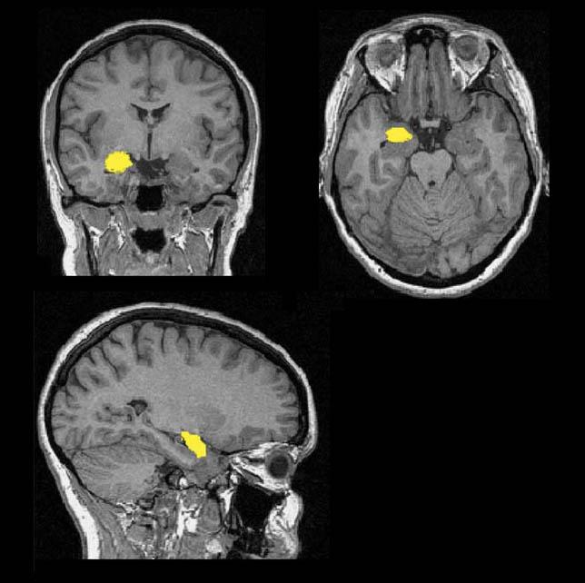 Снимок миндалевидного тела. Источник: {researchgate.net}(https://www.researchgate.net/figure/26654555_fig1_Fig-1-Amygdala-segmentation-Shown-are-coronal-transverse-and-sagittal-images-from-a)