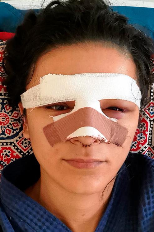 Третий день после операции. Видны отеки и синяки, но такое бывает не у всех. В соседней палате у девочек после ринопластики не было ни малейших отеков