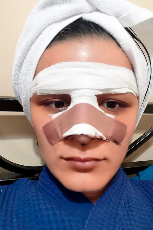 Седьмой день после операции, завтра снимут гипс. Не выдержала и помыла голову