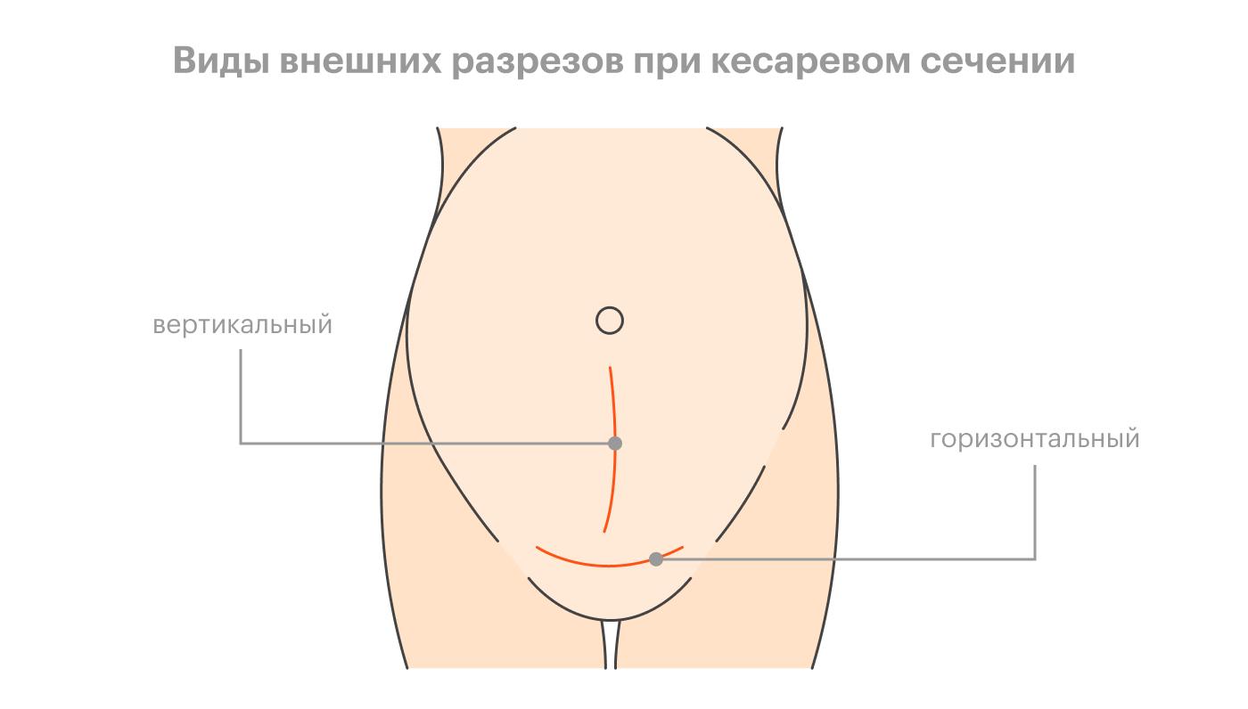 Горизонтальный разрез при кесаревом сечении лучше как минимум с косметической точки зрения: его можно спрятать под нижним бельем