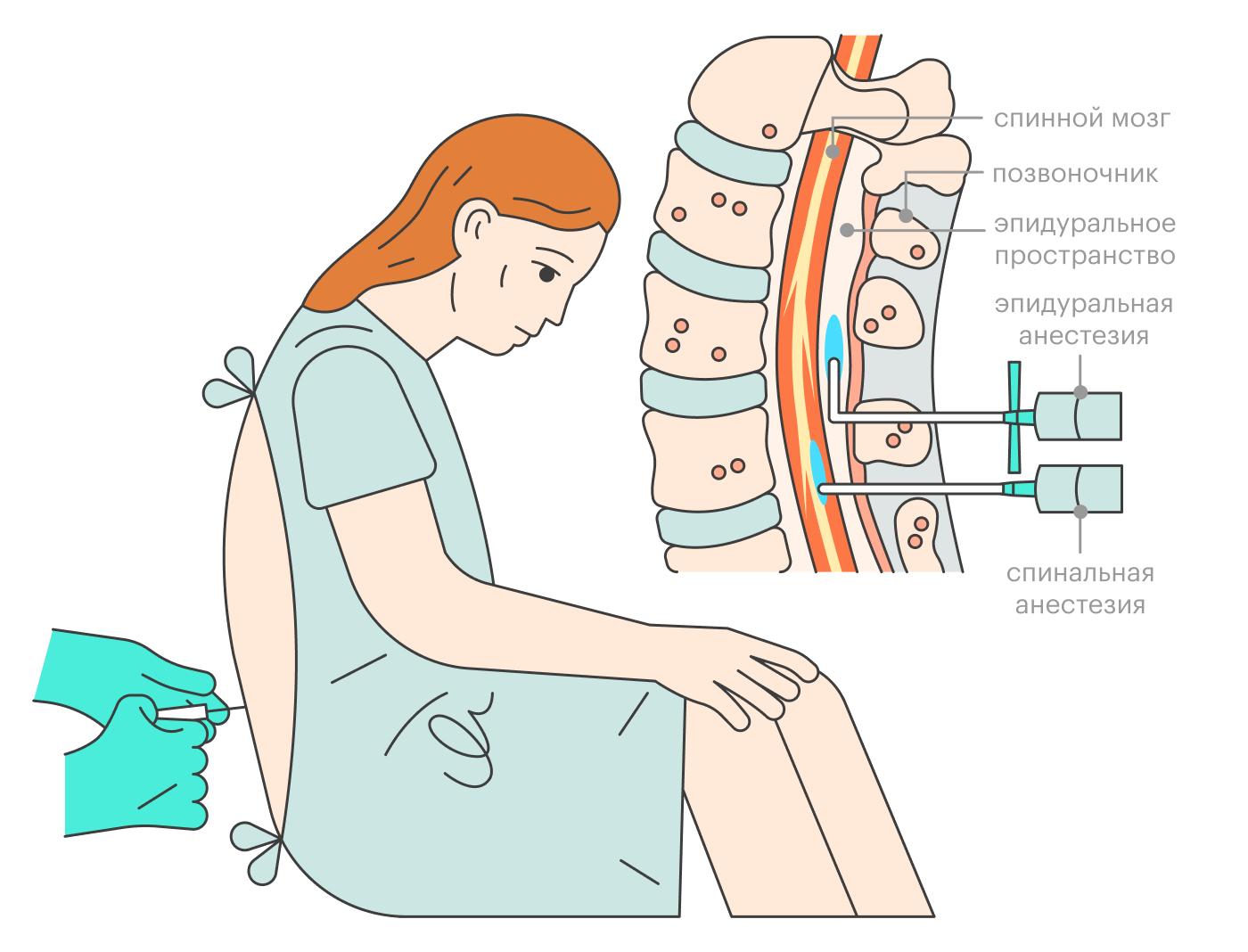 При эпидуральной анестезии врач оставляет на месте укола катетер, через который можно добавить анестетик. Спинальная анестезия — разовая процедура, ее действие продлить нельзя. Иногда врачи комбинируют оба варианта