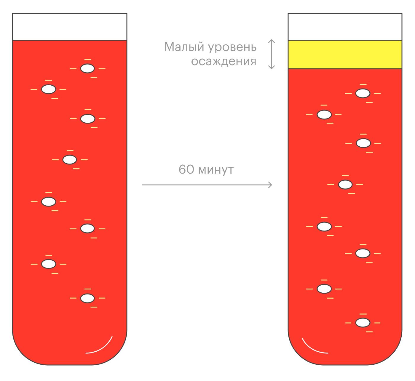 Если нет воспаления, эритроциты не слипаются друг с другом и оседают медленно