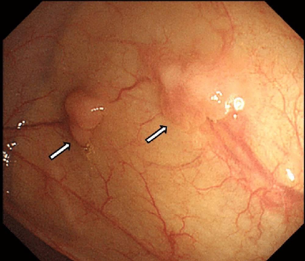 Так могут выглядеть полипы толстой кишки на колоноскопии. Источник: Researchgate