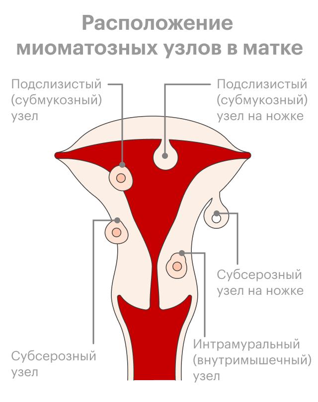 Схема расположения миоматозных узлов вматке