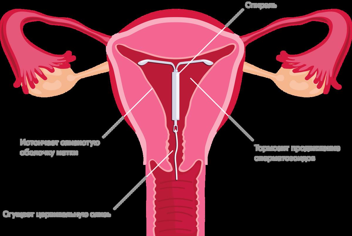 Механизм действия гормоносодержащих спиралей