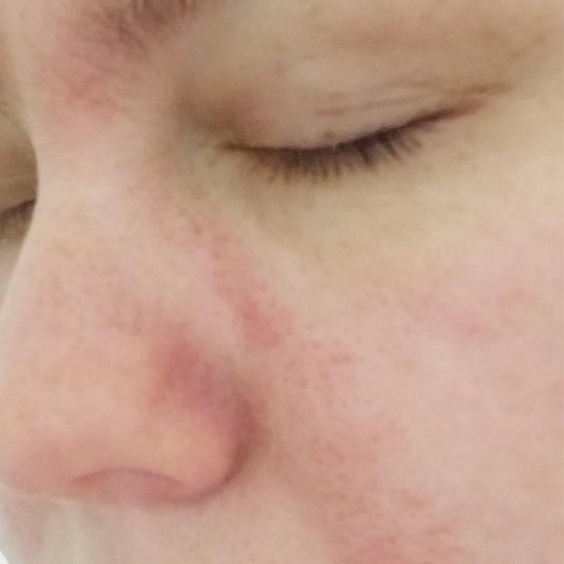 С такого покраснения кожи начинается обострение болезни, потом лицо покрывается желтыми корочками