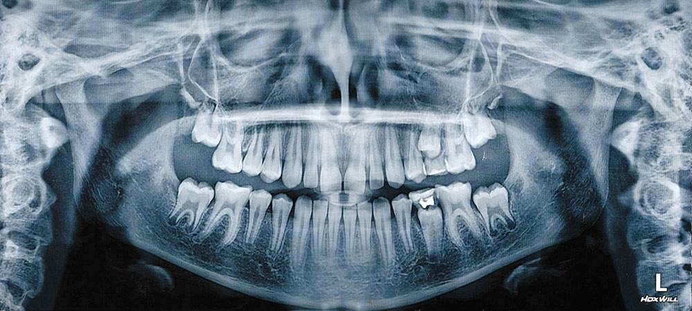 Снимок, на котором видна пломба на «пятерке» и два молочных зуба, которым было пора на выход
