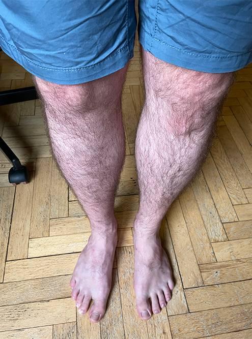 Спустя два с половиной года после травмы и операции ноги выглядят и функционируют совершенно одинаково