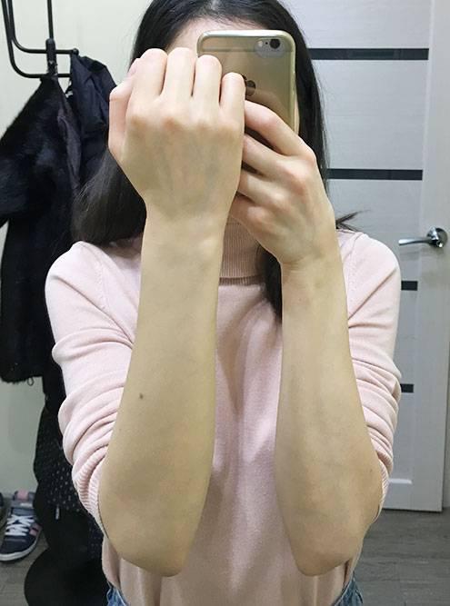 Фото после эпиляции