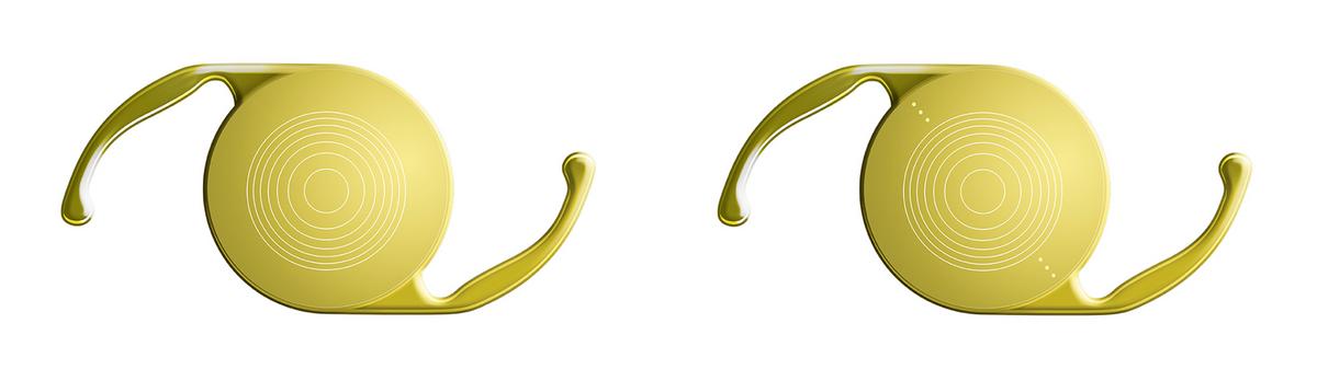Так выглядят мои интраокулярные линзы — мультифокальная и торическая мультифокальная. Желтый фильтр защищает сетчатку от ультрафиолетовых лучей, а усики помогают зафиксировать линзу в правильном положении. Диаметр линзы — 6 мм, с усиками — 13 мм