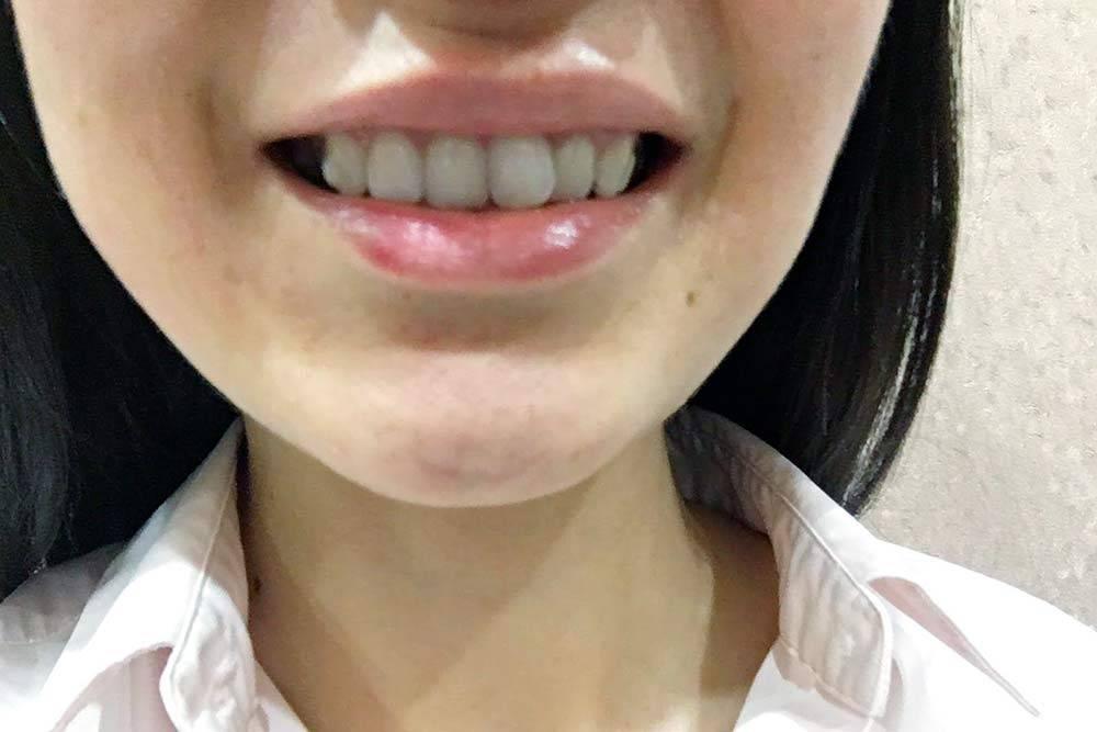 Элайнеры плотно прилегают к поверхности зубов и выглядят с ними как единое целое