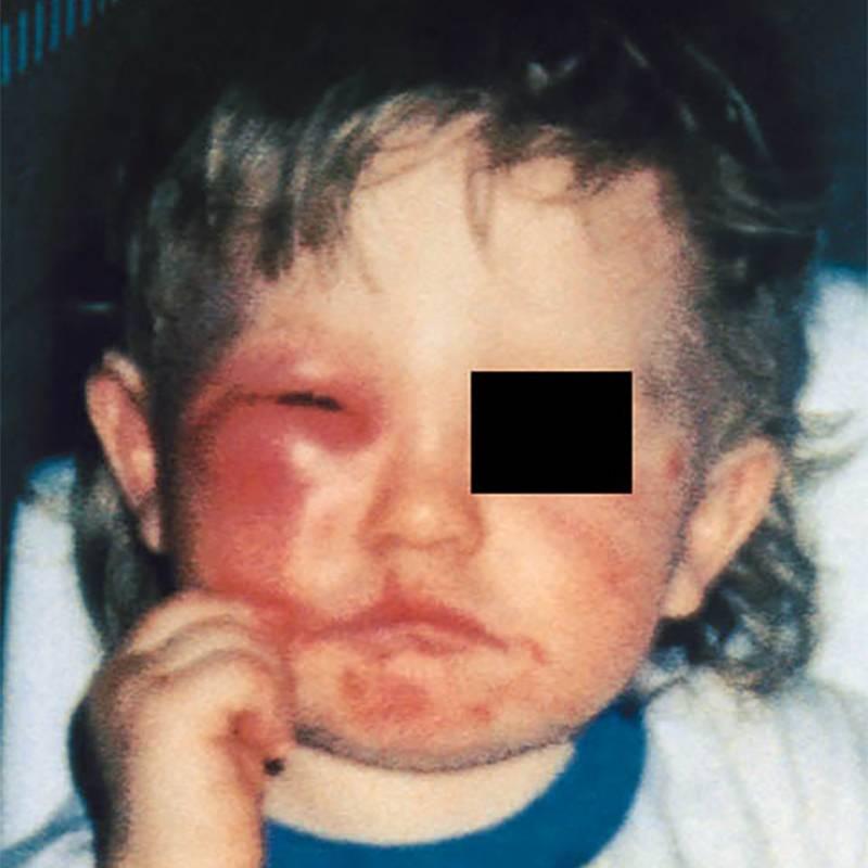 Синдром Скитера у ребенка. Источник: Журнал аллергологии и клинической иммунологии
