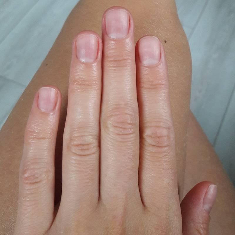 Из-за постоянной обработки антисептиками наработе кисти всегда светло-розовые