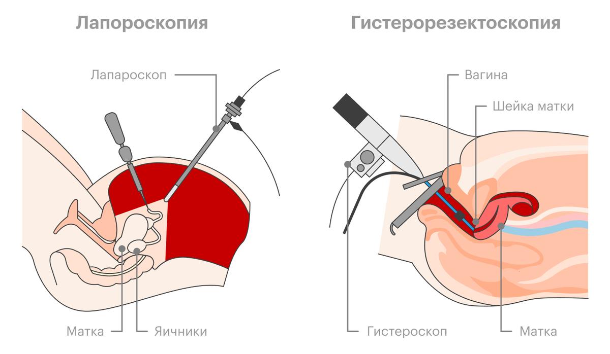 Лапаротомическое удаление миоматозных узлов выглядит как обычная полостная операция сразрезом наживоте. Прилапароскопической операции хирург вводит гибкие трубки через разрезы наживоте, пригистерорезектоскопической — через влагалище, вовсе безразрезов