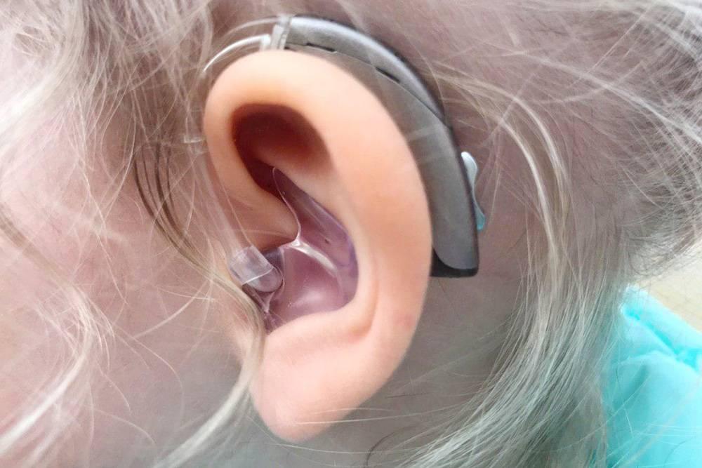 Моя дочь и ее первый слуховой аппарат