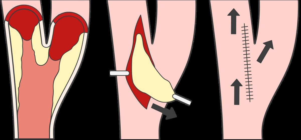 Приэндартерэктомии сонной артерии атеросклеротическую бляшку устраняют через разрез стенки. Потом сосуд ушивают, кровоток восстанавливается