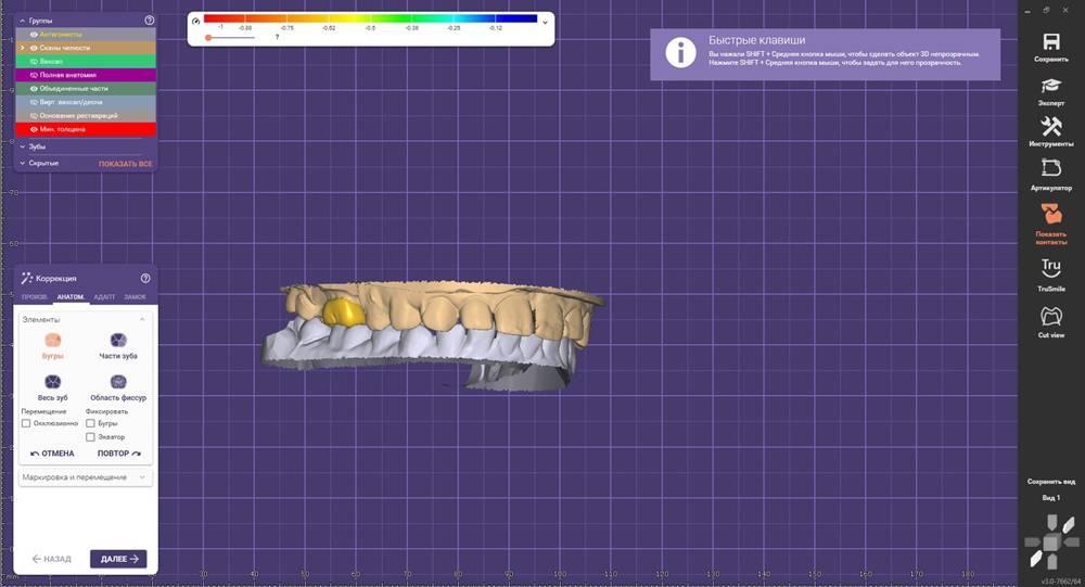 Процесс моделирования зуба в программе Exocad