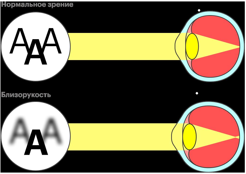 Глазное яблоко у людей с нормальным зрением ровно такой длины, чтобы фокусировать свет на сетчатке. У людей с близорукостью: свет фокусируется за сетчаткой, так что изображение вдали получается размытым