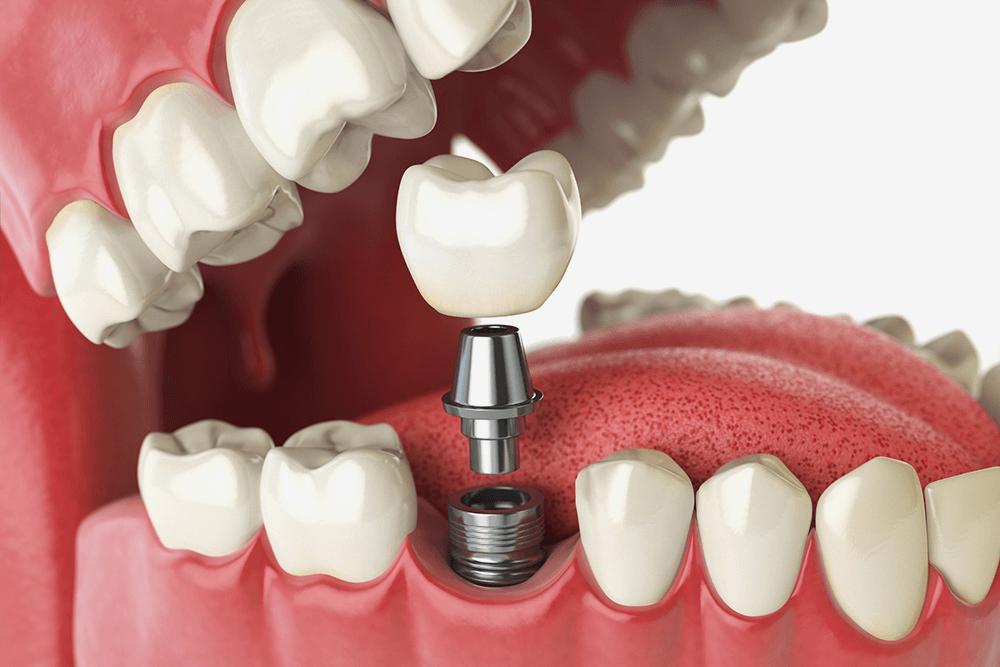 Примерно так и выглядит имплантация: в десну вживляют винт, на который навинчивают «переходник» между коронкой и зубом — абатмент. А уже на абатмент устанавливают коронку