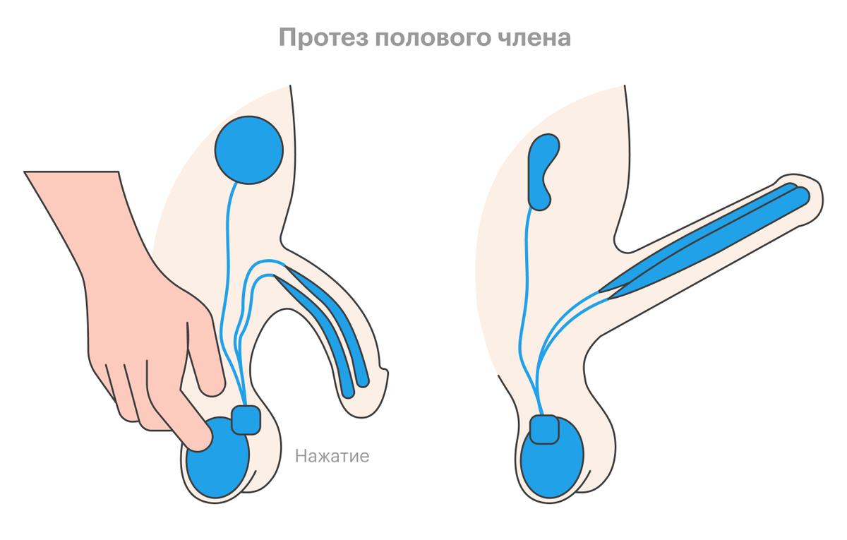 Принцип работы гидравлических протезов. Если несколько раз нажать на «грушу», имплантированную в мошонку, гидравлическая система заполнится жидкостью из специального резервуара — и возникнет эрекция. Чтобы деактивировать протез, нужно нажать на член или подушечки помпы в мошонке, тогда жидкость вернется в резервуар