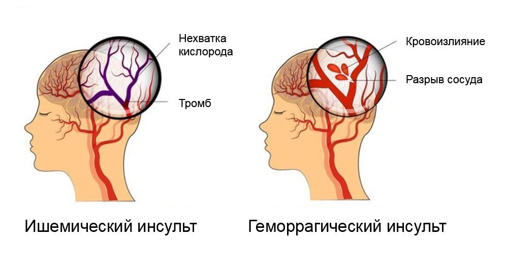Ишемический инсульт встречается в шесть раз чаще, чем геморрагический. Источник: Op2Lysis