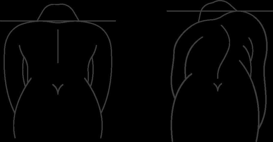 Принаклоне с одной стороны спины заметен валик, также одно плечо находится ниже другого