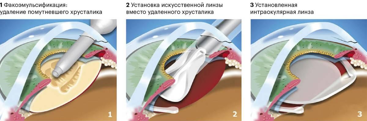 Установка интраокулярной линзы на место помутневшего хрусталика. Источник: iris-center.ru