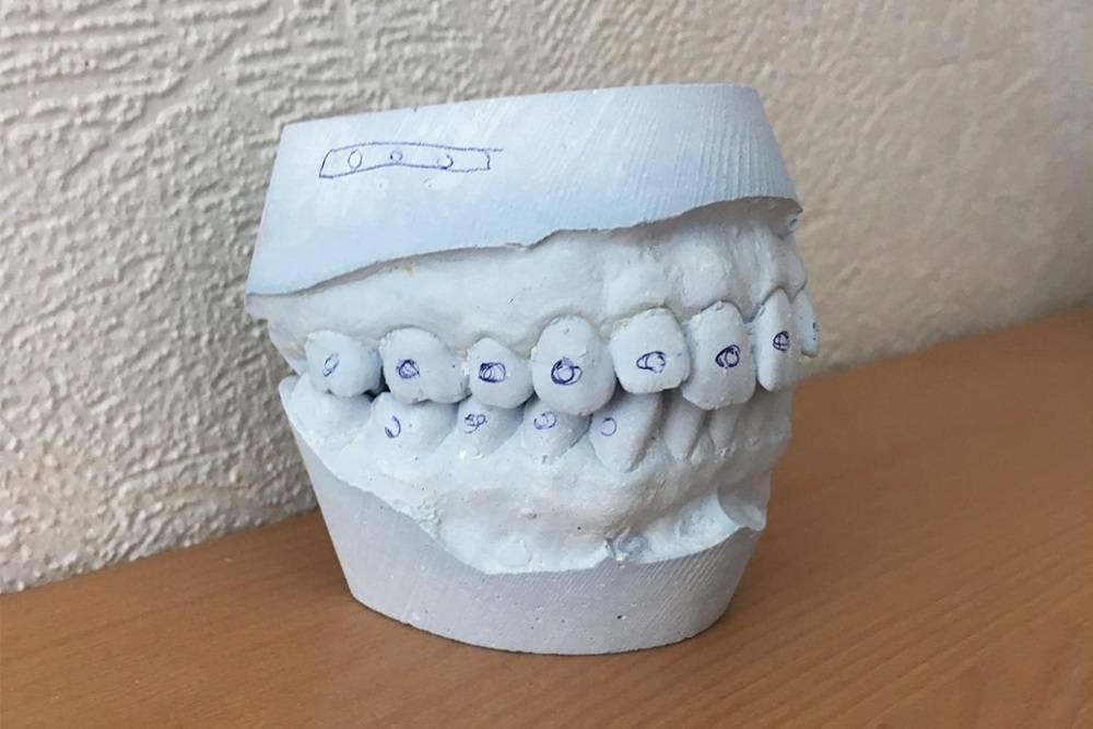 Слепок моих зубов до операции. На нем хорошо видно передние верхние зубы, которые стоят не на своем месте