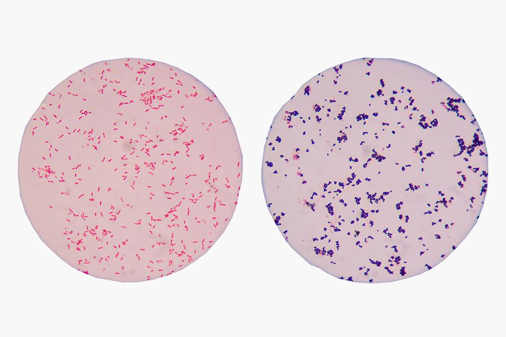 Так выглядят подмикроскопом окрашенные по Граму бактерии. Слева — грамотрицательные, справа — грамположительные. Источник: Schira / Shutterstock
