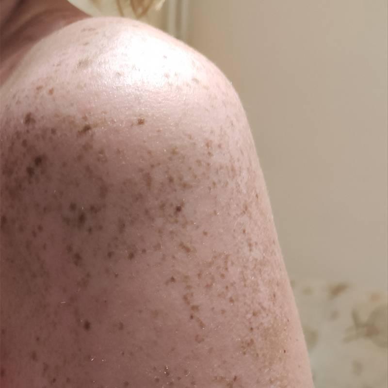 Так выглядит плечо три недели спустя