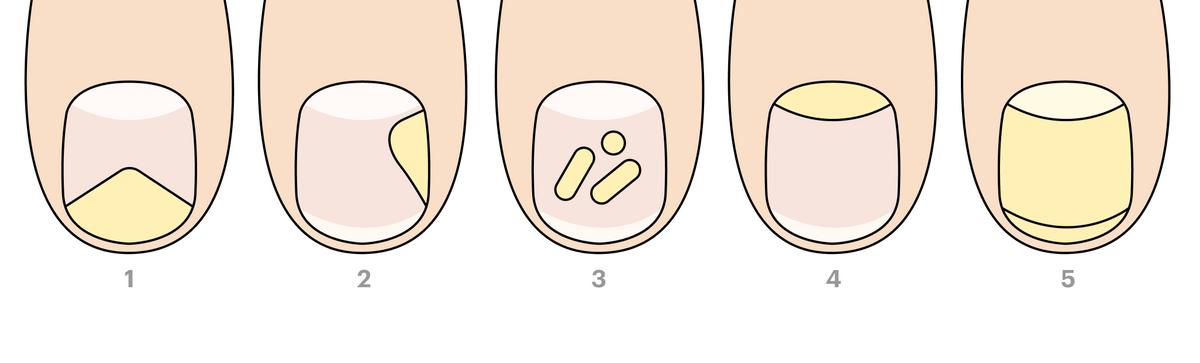 Разные виды грибка ногтей. 1— дистальный онихомикоз, 2— латеральный, 3— белый поверхностный, 4— проксимальный, 5— общий дистрофический
