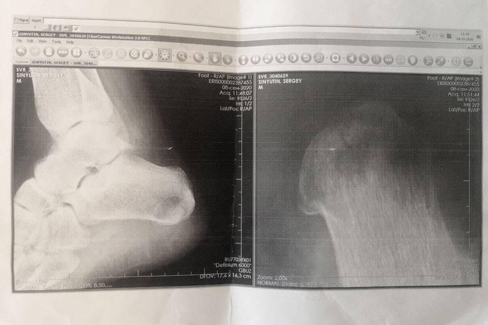 Рентген пятки после заживления