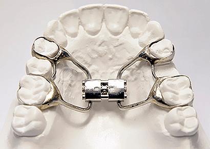 Так выглядит расширитель челюсти — дистрактор. Источник: dentalmagazine.ru