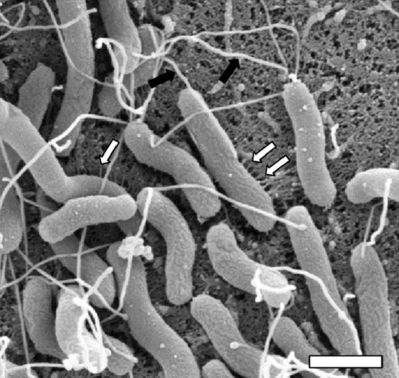 Так хеликобактер пилори выглядит подбольшим увеличением — как толстенькая палочка с несколькими жгутиками спереди. Источник: ResearchGate