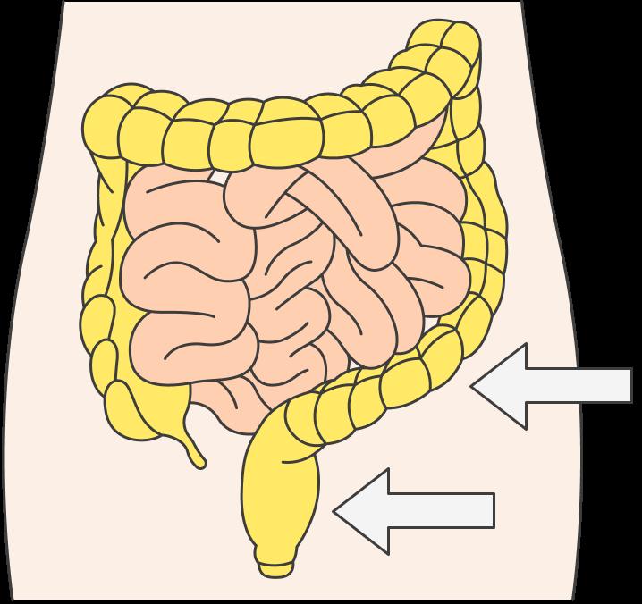 Полипы толстой кишки в основном находят в прямой и сигмовидной кишках — двух самых близких к анусу отделах