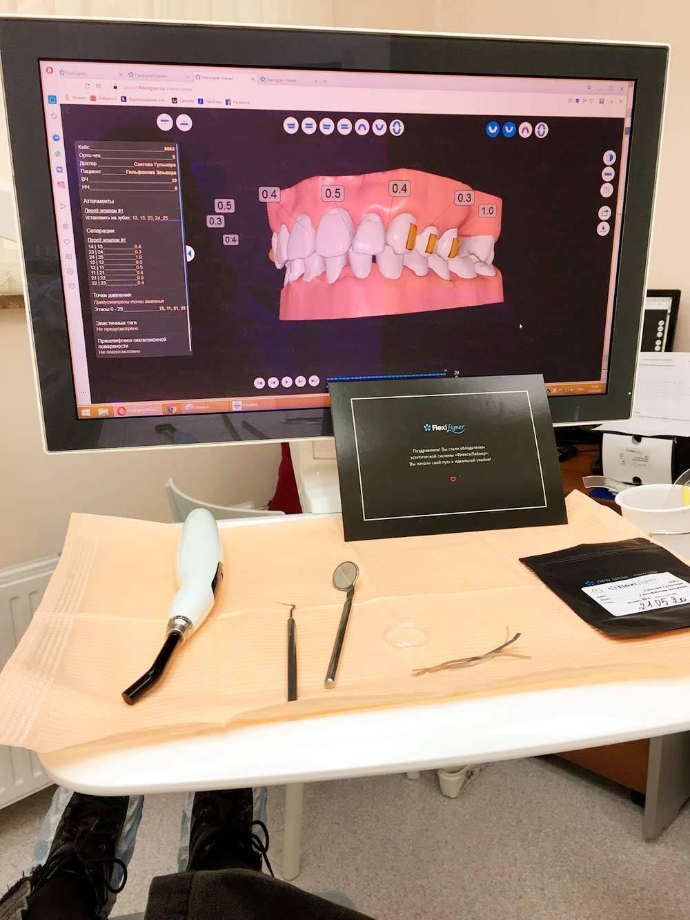 Тот самый сеанс первичной установки элайнеров. Оранжевые прямоугольники на зубах, отображаемые на мониторе, — аттачменты. Вреальности они изпрозрачного пломбировочного материала