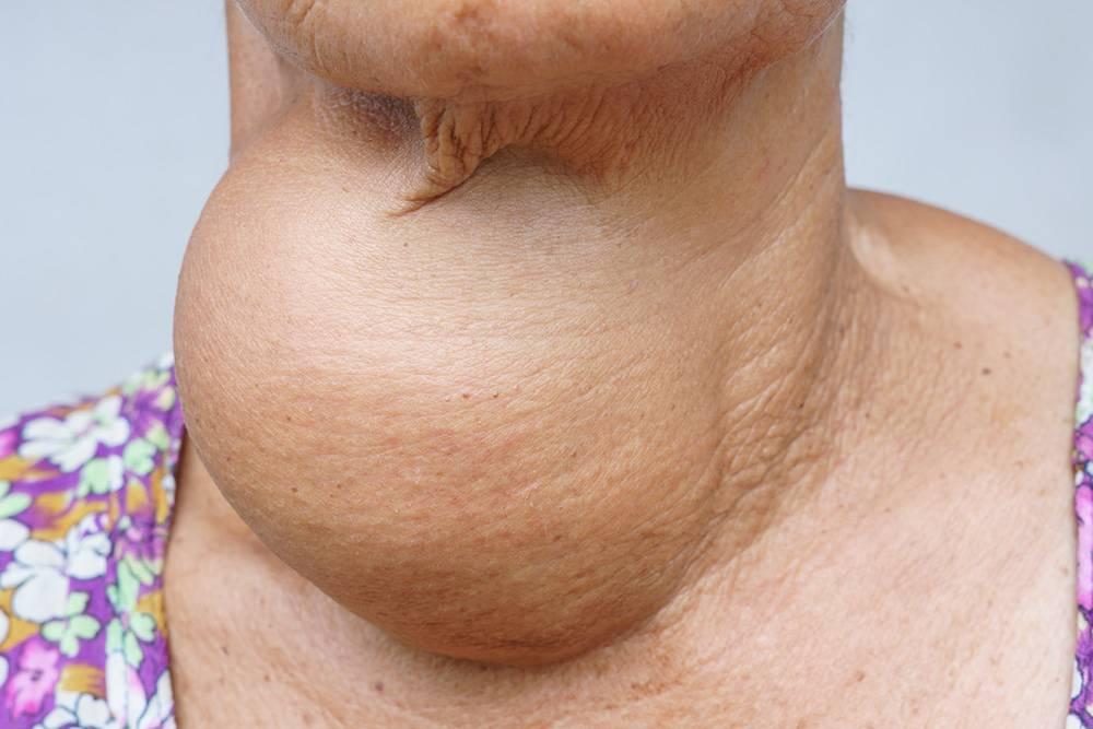Иногда щитовидная железа разрастается настолько сильно, что объем зоба становится больше самой шеи. Источник: chatuphot / Shutterstock
