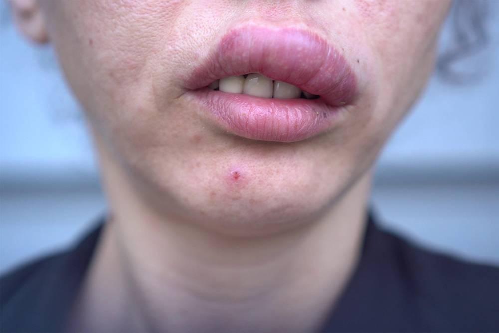 Отеки возникают не в месте укуса, а, например, на губе. Источник: Fevziie / Shutterstock