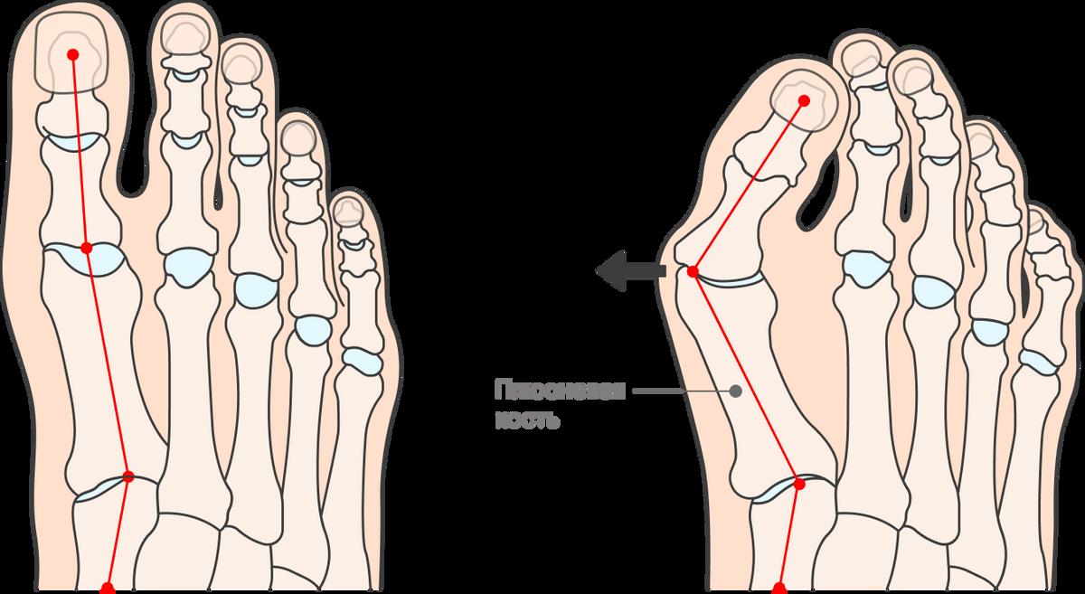 Притяжелой вальгусной деформацииплюсневая кость отклоняется от остальных костей. В итоге форма стопы меняется и становится больно ходить